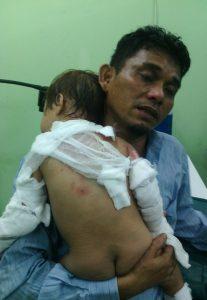 Salah Satu Anak Korban Bom